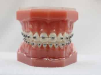 Feste Zahnspange Herne