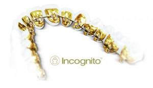 Incognito Lingualtechnik Zahnspange