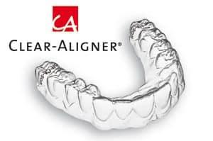Clear Aligner Zahnschiene